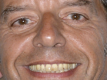 Sticker other michel cymes medecin docteur toubib sourire zoom